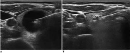 Момент введения этанола в кисту щитовидной железы